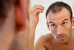 Hair Loss Man